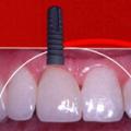 Implant, s.r.o.
